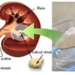 Le Royal London Hospital a mené une étude sur le bicarbonate de soude et son effet sur les calculs rénaux. L'étude a montré que ce produit pouvait être très bénéfique pour la fonction rénale et ralentir la formation de calculs rénaux. Il a aussi été révélé que ce remède pour les reins pourrait aider les personnes sous dialyse.