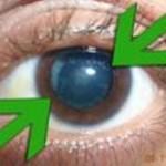 Les cataractes sont plus communes chez les diabétiques et chez les fumeurs. Elles n'affectent pas toute la population de personnes âgées. C'est pourquoi la médecine naturelle indique que les cataractes sont provoquées par une mauvaise alimentation ainsi que certaines maladies qui créent une tension dans les muscles de l'œil.