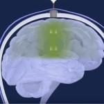 Capture d'écran de la vidéo de présentation de l'implant SonoCloud.