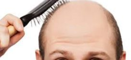 Les hommes chauves plus exposés aux problèmes cardiaques
