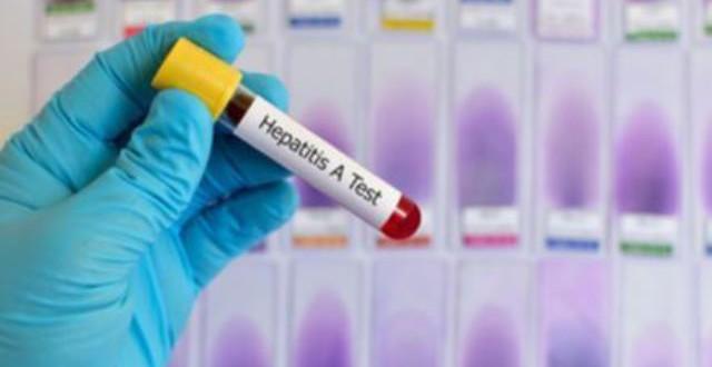 Tendances des hépatites au Burkina Faso: hépatite C 3-4%, hépatite B 8%