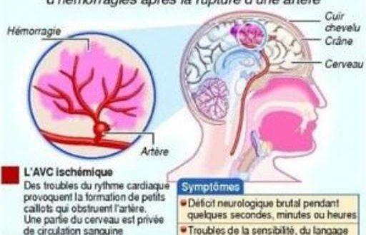 Journée du cerveau 2017 : La Société de neurologie du Burkina veut sensibiliser sur la prévention et le traitement de l'AVC